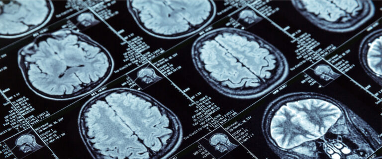 Artificial Intelligence may diagnose dementia in a day